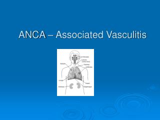 ANCA – Associated Vasculitis