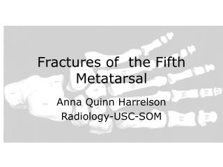 Fractures of  the Fifth Metatarsal