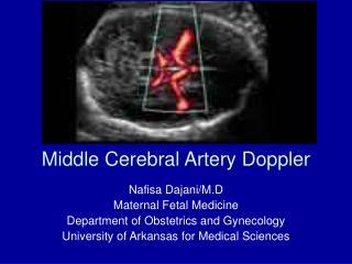 Middle Cerebral Artery Doppler