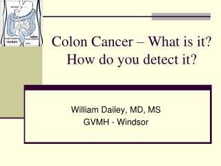 Colon Cancer - What is it How do you detect it