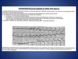 NNA SITE-Supraventricular Origin of Wide QRS Beats