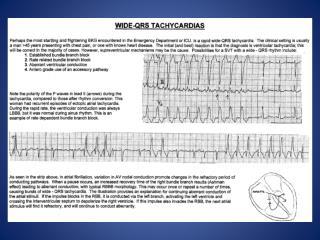 NNA SITE- Wide-QRS Tachycardias