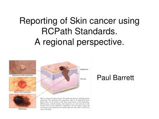 Reporting of Skin cancer using RCPath Standards.  A regional perspective.