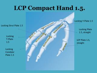 LCP Compact Hand 1.5.