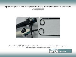 Figure 2  Olympus URF‑V (top) and KARL STORZ Endoskope Flex-Xc (bottom) ureteroscopes