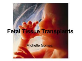 Fetal Tissue Transplants