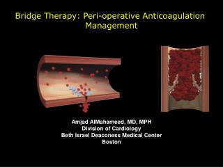 Bridge Therapy: Peri-operative Anticoagulation  Management Amjad AlMahameed, MD, MPH