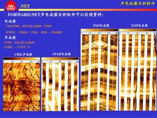 FORWARD.NET 声电成像分析软件可以处理资料 : 电成像 ( MAX500 、 EXCELL2000 、 5700 )