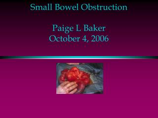 Small Bowel Obstruction Paige L Baker October 4, 2006