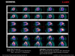 Case:  Male 75 year old Scan:  Stress – 16.4 mCi  99m Tc Tetrofosmin