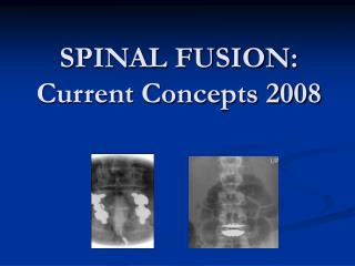 SPINAL FUSION: Current Concepts 2008