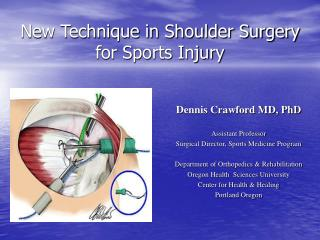 New Technique in Shoulder Surgery for Sports Injury
