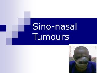 Sino-nasal Tumours