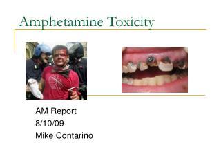 Amphetamine Toxicity