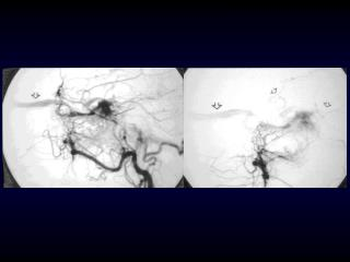 Dural Arteriovenous Fistulae Static or Dynamic?