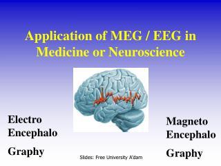 Magneto Encephalo Graphy