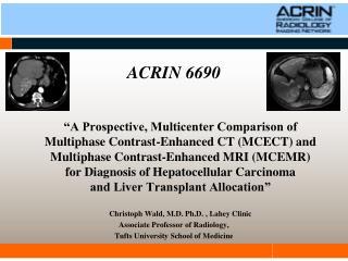 ACRIN 6690
