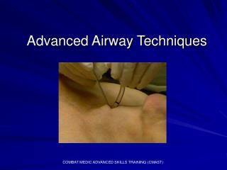 Advanced Airway Techniques