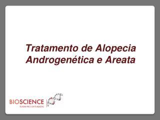 Tratamento de Alopecia Androgen�tica e Areata  2013