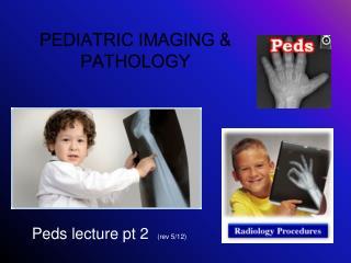 Peds lecture pt 2   (rev 5/12)
