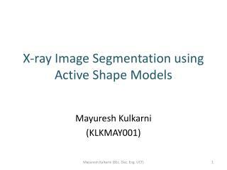 X-ray Image Segmentation using Active Shape Models