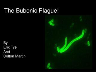 The Bubonic Plague!