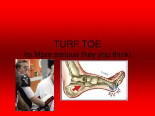 TURF TOE Its More serious they you think!