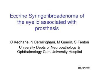 Eccrine Syringofibroadenoma of the eyelid associated with prosthesis