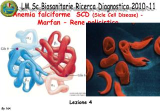 Anemia falciforme  SCD  (Sicle Cell Disease) - Marfan - Rene policistico