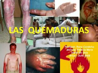 LAS  QUEMADURAS
