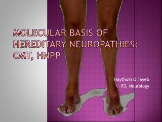 Molecular Basis of  Hereditary Neuropathies: CMT, HNPP
