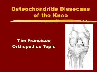 Osteochondritis Dissecans of the Knee