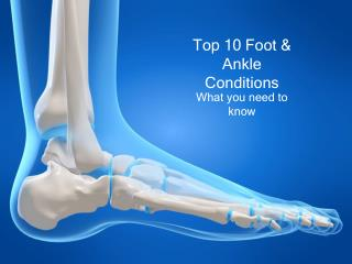 Top 10 Foot & Ankle Conditions