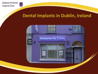 Searching for Dental implants clinic in Dublin?