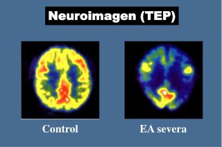 Neuroimagen (TEP)