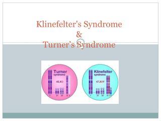 Klinefelter's S yndrome &  Turner's Syndrome
