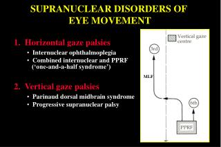 SUPRANUCLEAR DISORDERS OF  EYE MOVEMENT