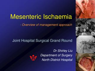 Mesenteric Ischaemia - Overview of management approach
