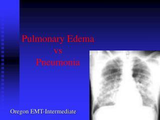 Pulmonary Edema vs  Pneumonia