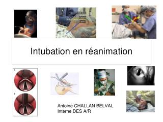Intubation en r animation