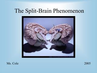 The Split-Brain Phenomenon