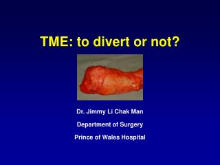 TME: to divert or not?