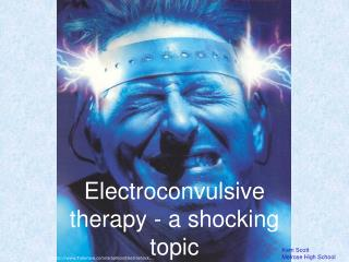 Electroconvulsive therapy - a shocking topic