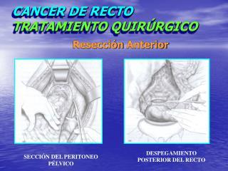 CANCER DE RECTO TRATAMIENTO QUIRÚRGICO