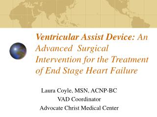 Ventricular Assist Device: An Advanced  Surgical Intervention for the Treatment of End Stage Heart Failure