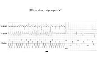 ICD-shock on polymorphic VT