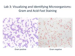 Lab 3: Visualizing and Identifying Microorganisms:  Gram and Acid-Fast Staining