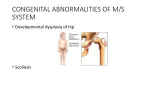 CONGENITAL ABNORMALITIES OF M/S SYSTEM