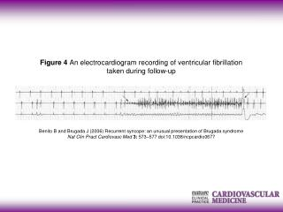 Benito B  and  Brugada J (2006) Recurrent syncope: an unusual presentation of Brugada syndrome