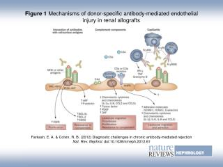 Figure 1 Mechanisms of donor-specific antibody-mediated endothelial injury in renal allografts